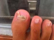 My toe....